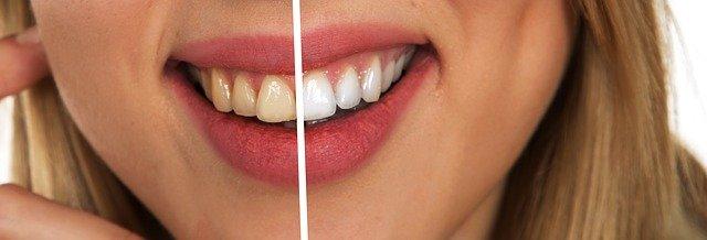 vybělené zuby